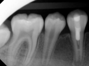 Regenerative Endodontics After